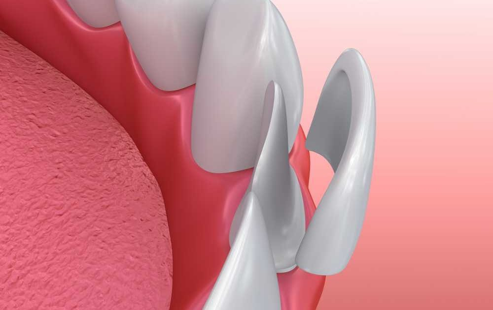 Why is it advisable to get dental Veneers to sort out your dental problems? latestworldtrends.com