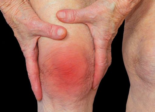What is arthritis? What are its causes and symptoms?
